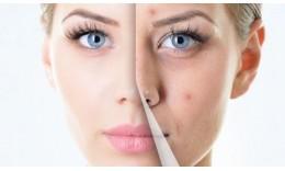 Догляд за типом шкіри