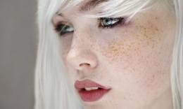 Вивести плями на шкірі