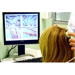 Безкоштовна трихоскопічна діагностика та консультація