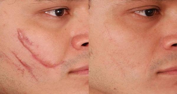 Лікування шрамів